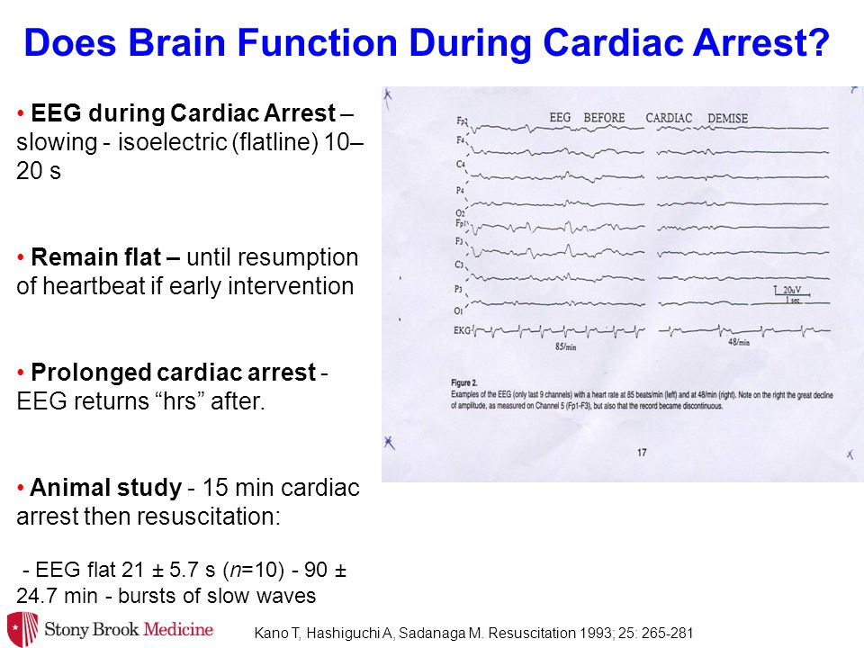 344 cardiac arrest survivors - 10 hospitals Largest NDE Study in Cardiac Arrest 41 (12%) reported core NDEs - No association with: 8 year follow up - positive change in life Did not test physiological parameters ?.