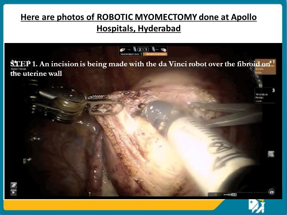 Here are photos of ROBOTIC MYOMECTOMY done at Apollo Hospitals, Hyderabad STEP 1.