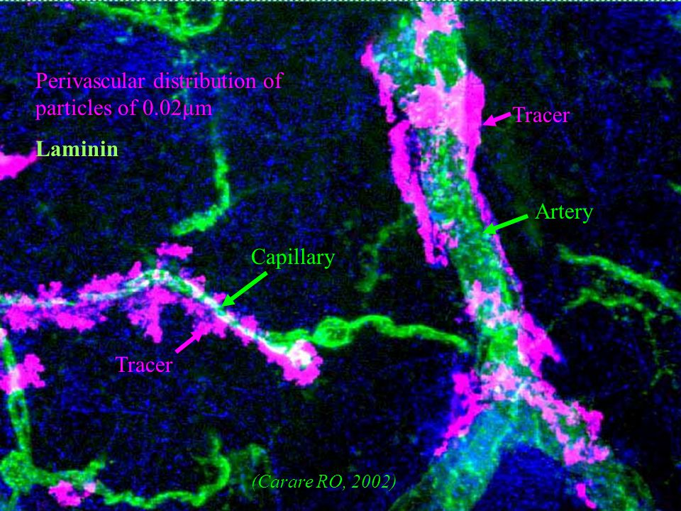 6 Tracer Artery Capillary Tracer Perivascular distribution of particles of 0.02µm Laminin (Carare RO, 2002)