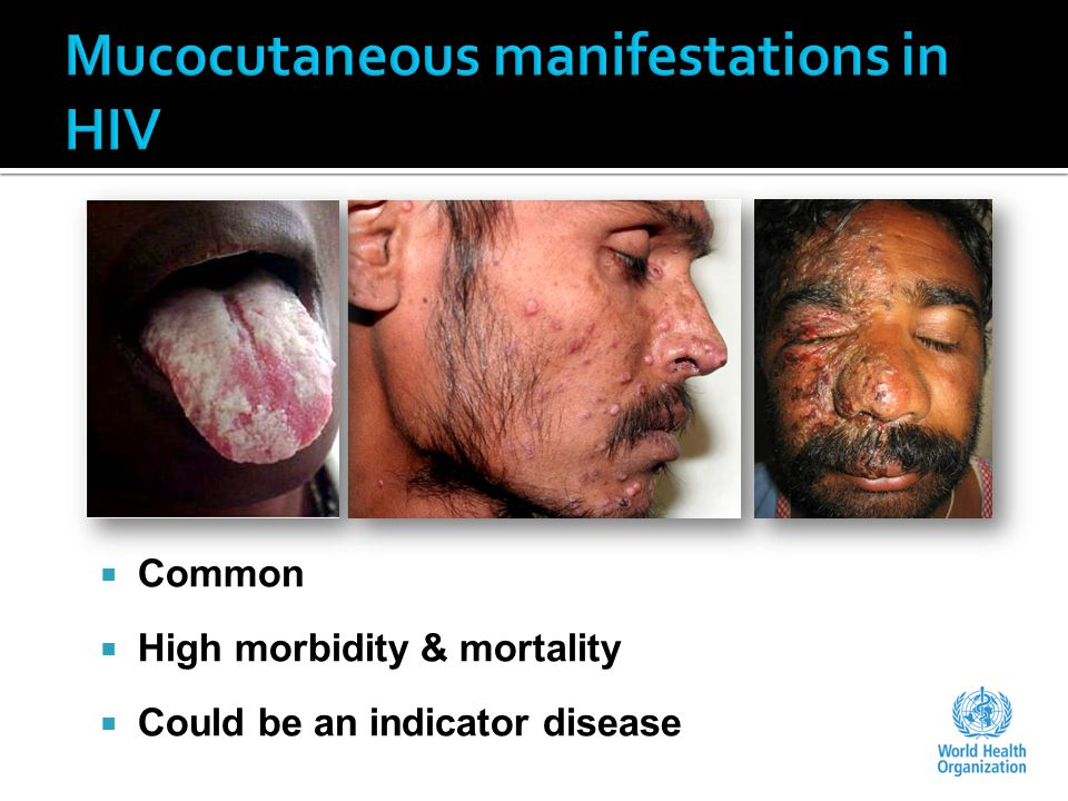  Common  High morbidity & mortality  Could be an indicator disease