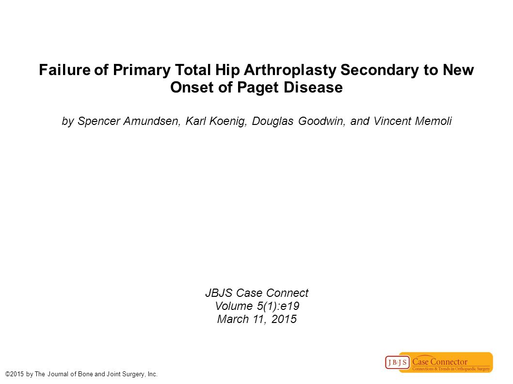 Failure of Primary Total Hip Arthroplasty Secondary to New Onset of Paget Disease by Spencer Amundsen, Karl Koenig, Douglas Goodwin, and Vincent Memol
