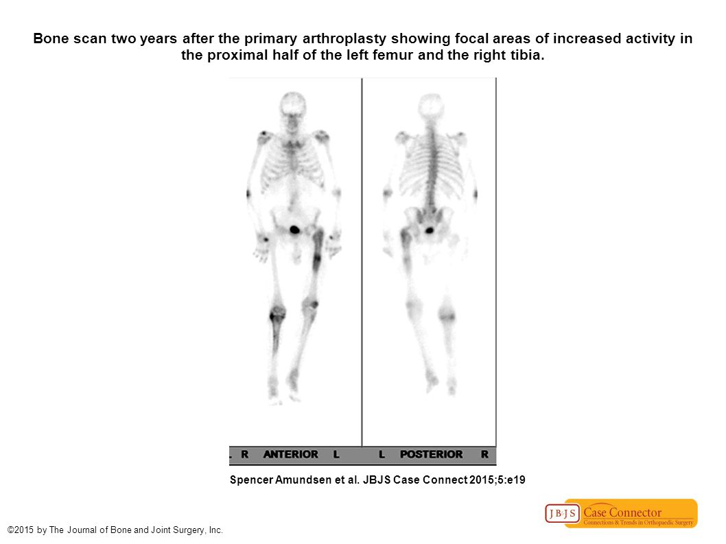 Bone scan two years after the primary arthroplasty showing focal areas of increased activity in the proximal half of the left femur and the right tibi