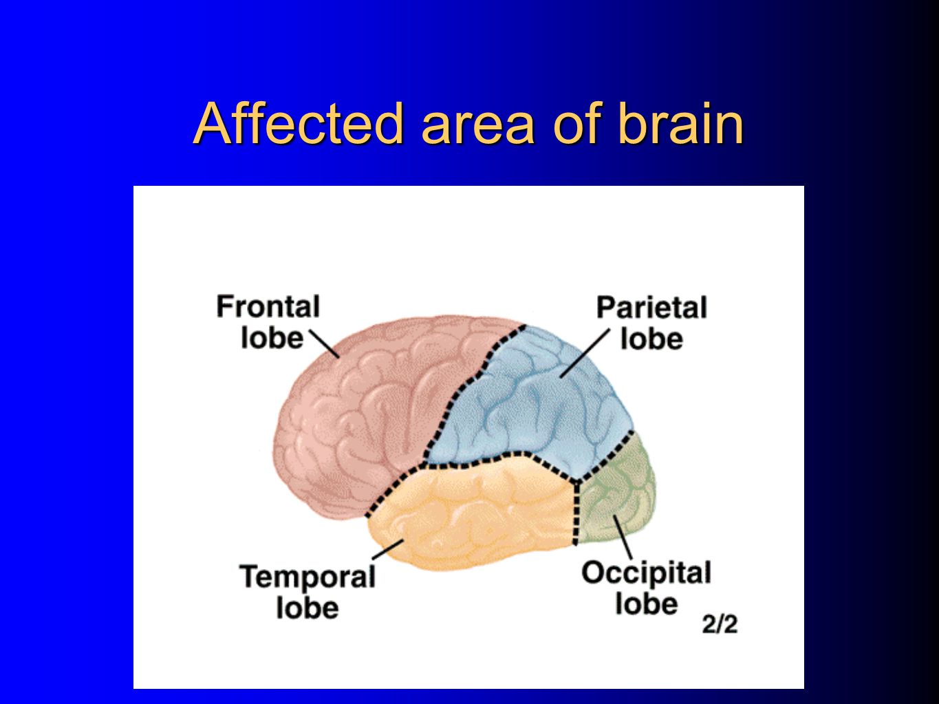 Affected area of brain