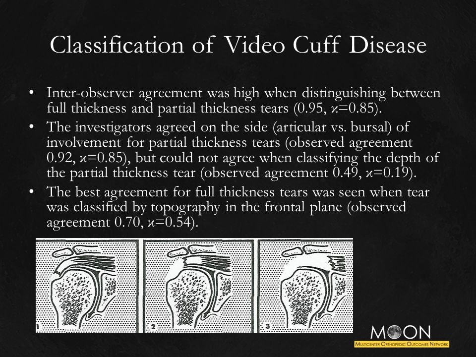 Classification of Video Cuff Disease Inter-observer agreement was high when distinguishing between full thickness and partial thickness tears (0.95, κ=0.85).