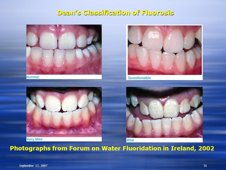 September 17, 200731 Dean's Classification of Fluorosis Photographs from Forum on Water Fluoridation in Ireland, 2002