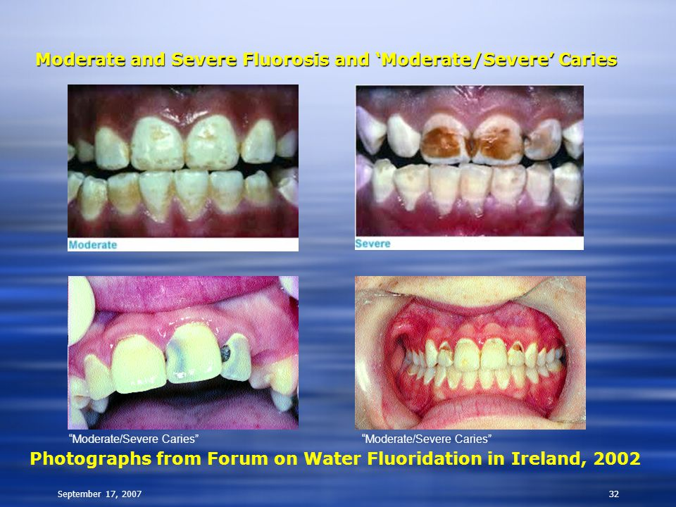 """September 17, 200732 Moderate and Severe Fluorosis and 'Moderate/Severe' Caries Photographs from Forum on Water Fluoridation in Ireland, 2002 """"Moderat"""