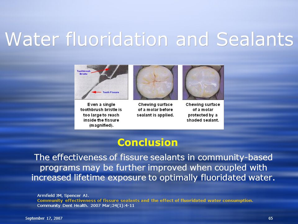September 17, 200765 Water fluoridation and Sealants Conclusion The effectiveness of fissure sealants in community-based programs may be further improved when coupled with increased lifetime exposure to optimally fluoridated water.