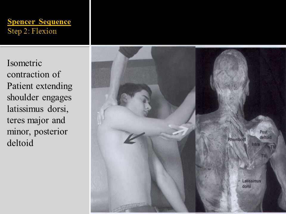 Spencer Sequence Step 2: Flexion Isometric contraction of Patient extending shoulder engages latissimus dorsi, teres major and minor, posterior deltoi