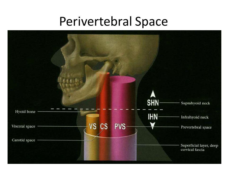 Prevertebral portion of the perivertebral space.Perivertebral space.