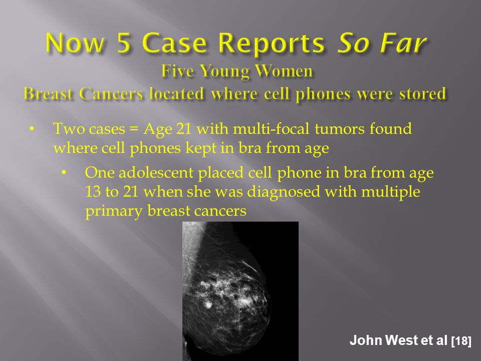 John West et al [18] Two cases = Age 21 with multi-focal tumors found where cell phones kept in bra from age One adolescent placed cell phone in bra from age 13 to 21 when she was diagnosed with multiple primary breast cancers