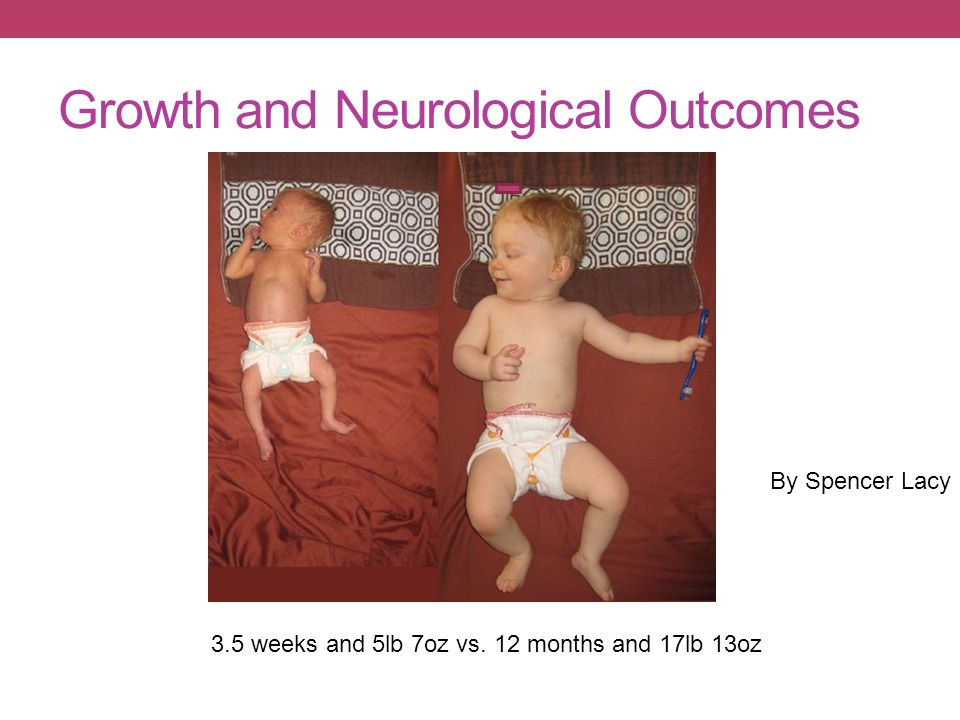 3.5 weeks and 5lb 7oz vs. 12 months and 17lb 13oz By Spencer Lacy Growth and Neurological Outcomes