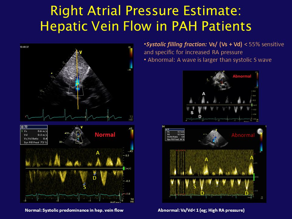 Right Atrial Pressure Estimate: Hepatic Vein Flow in PAH Patients Systolic filling fraction: Vs/ (Vs + Vd) < 55% sensitive and specific for increased