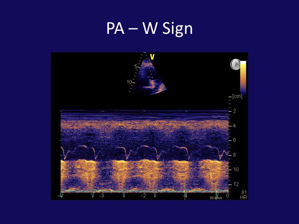 PA – W Sign
