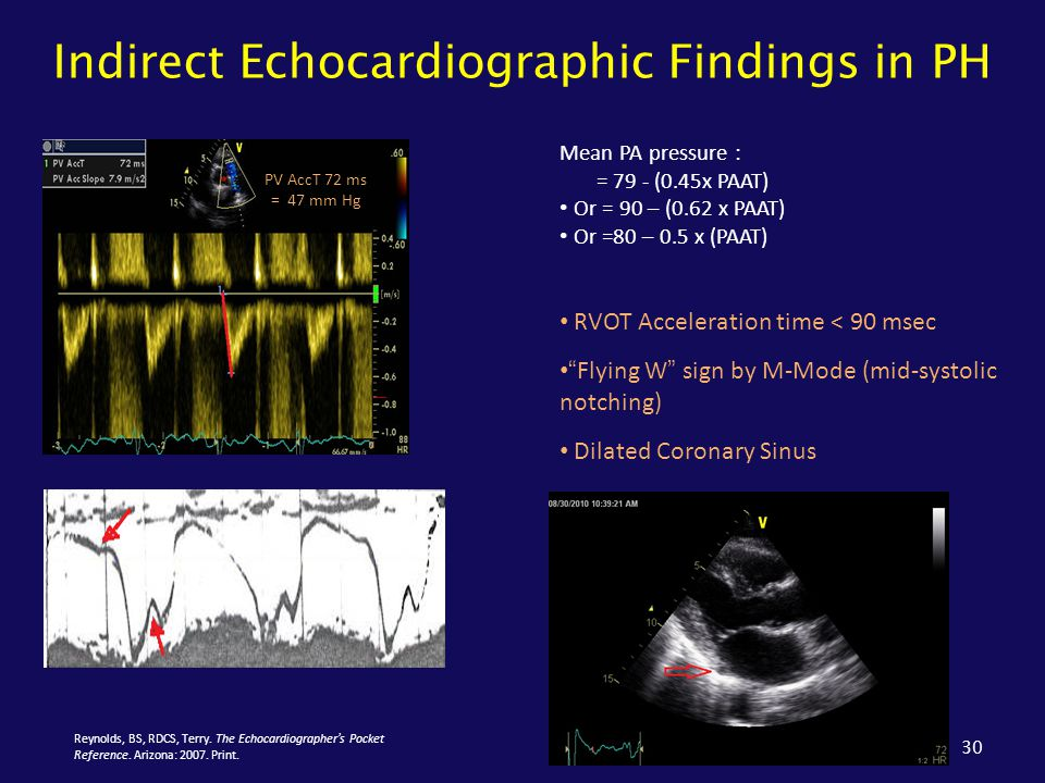 """Indirect Echocardiographic Findings in PH 30 RVOT Acceleration time < 90 msec """"Flying W"""" sign by M-Mode (mid-systolic notching) Dilated Coronary Sinus"""