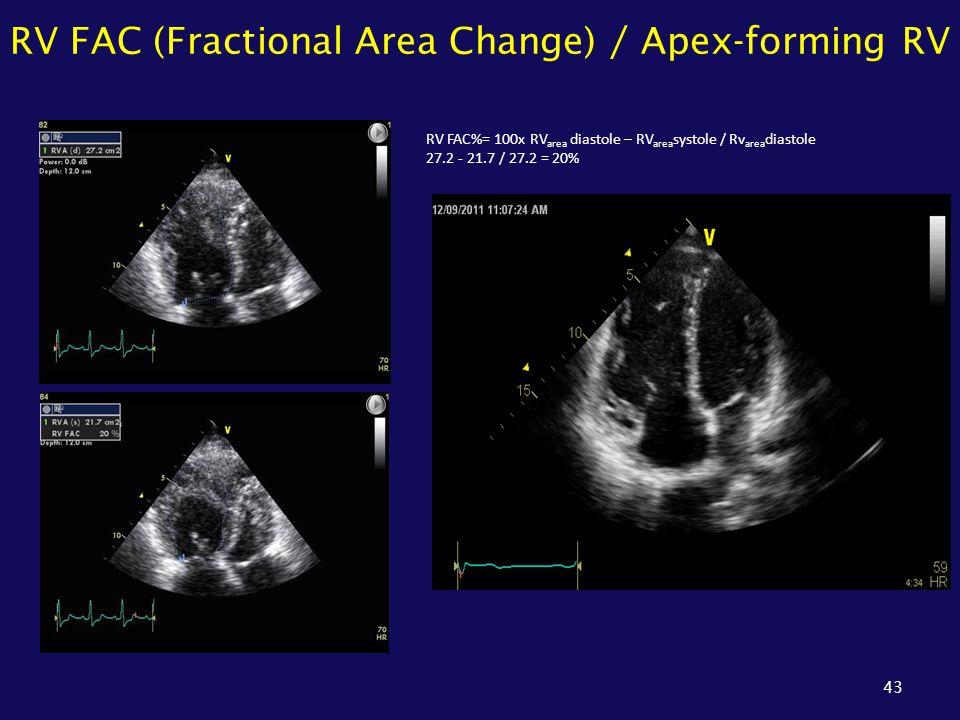 RV FAC (Fractional Area Change) / Apex-forming RV 43 RV FAC%= 100x RV area diastole – RV area systole / Rv area diastole 27.2 - 21.7 / 27.2 = 20%