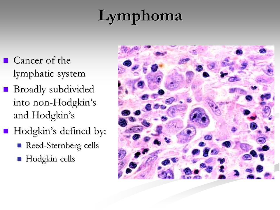 Lymphoma Cancer of the lymphatic system Cancer of the lymphatic system Broadly subdivided into non-Hodgkin's and Hodgkin's Broadly subdivided into non-Hodgkin's and Hodgkin's Hodgkin's defined by: Hodgkin's defined by: Reed-Sternberg cells Reed-Sternberg cells Hodgkin cells Hodgkin cells