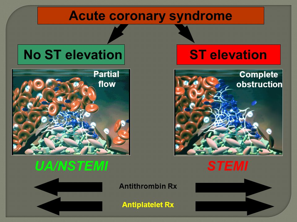No ST elevationST elevation Acute coronary syndrome Antiplatelet Rx Antithrombin Rx Complete obstruction Partial flow UA/NSTEMISTEMI