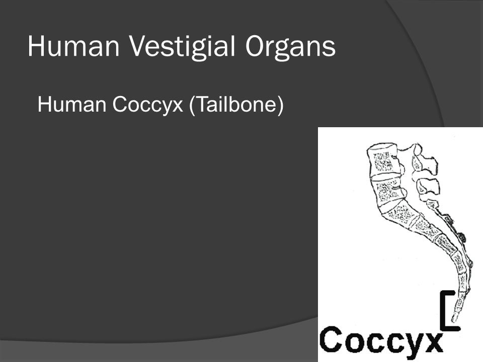 Human Vestigial Organs Human Coccyx (Tailbone)