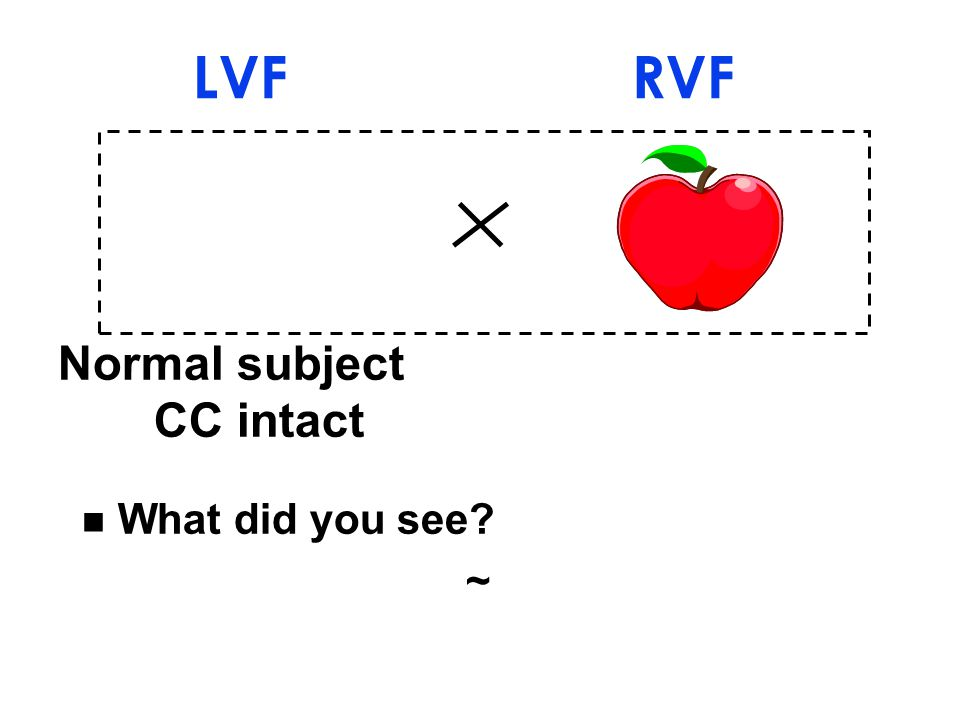 Normal subject CC intact LVF RVF n What did you see ~