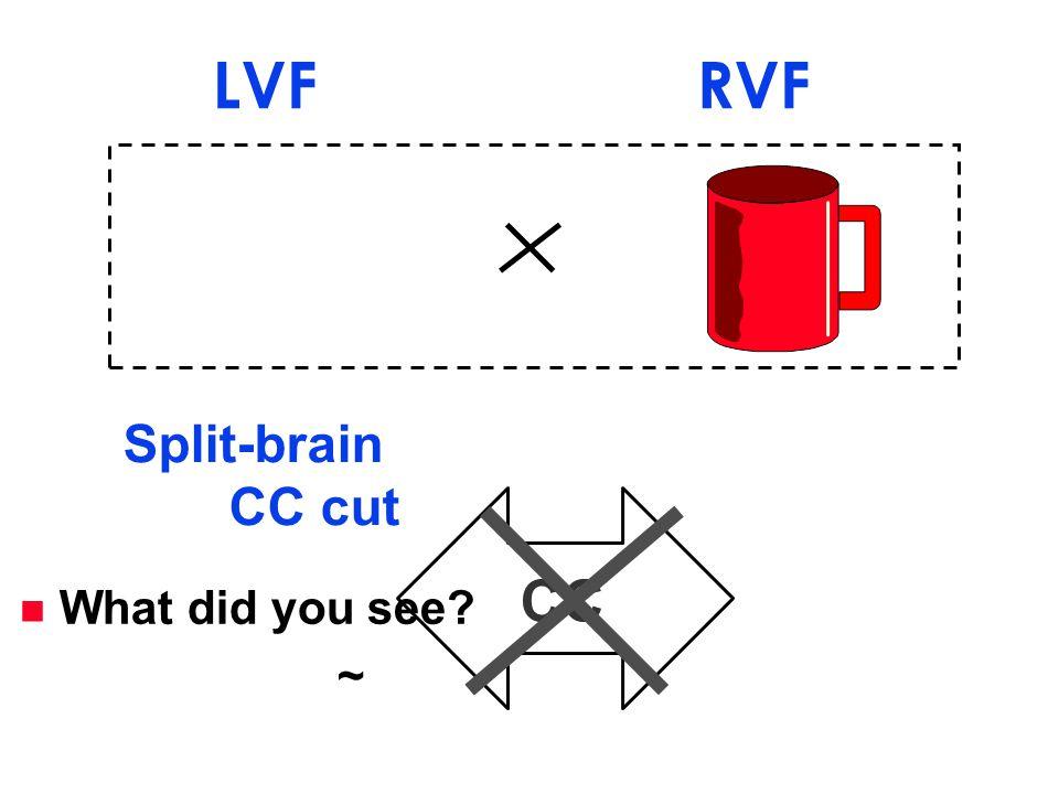 CC Split-brain CC cut LVF RVF n What did you see? ~