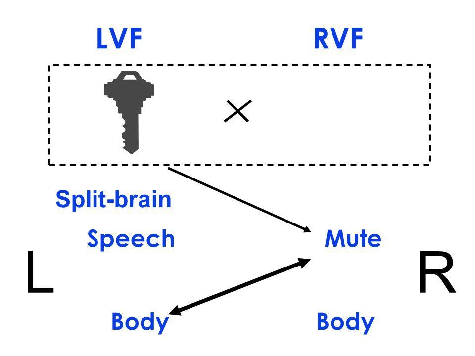 Split-brain Speech Mute Body LR LVF RVF