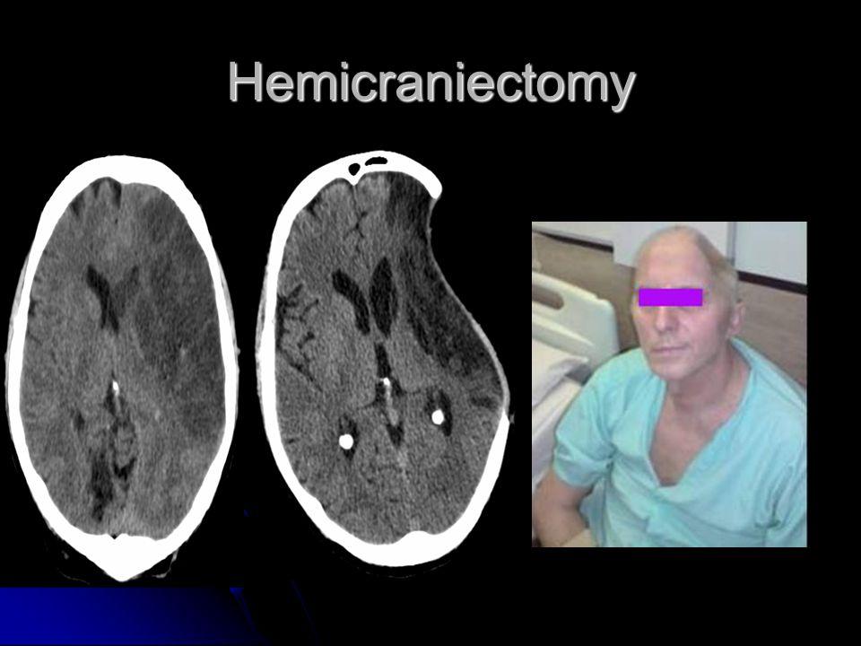 Hemicraniectomy