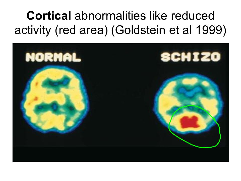 Cortical abnormalities like reduced activity (red area) (Goldstein et al 1999)