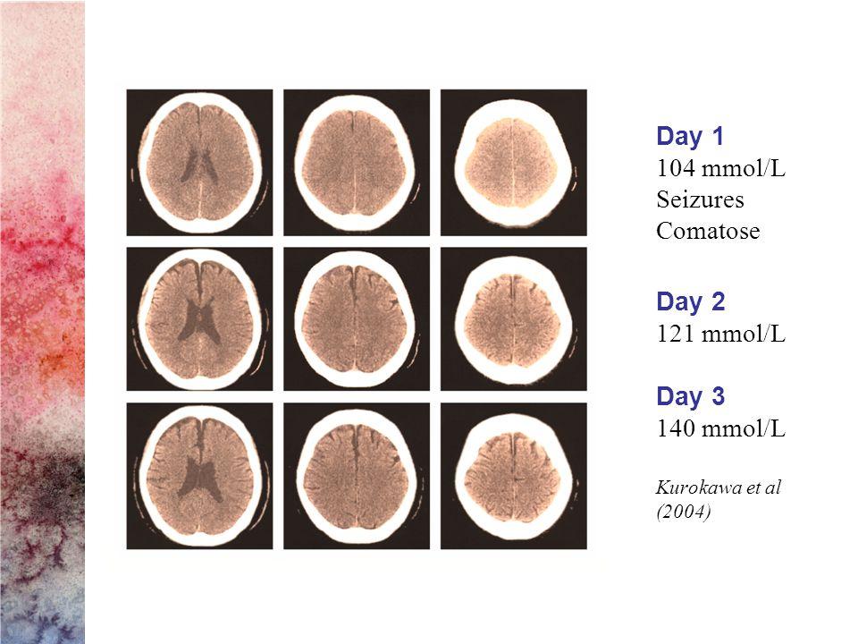 Day 1 104 mmol/L Seizures Comatose Day 2 121 mmol/L Day 3 140 mmol/L Kurokawa et al (2004)