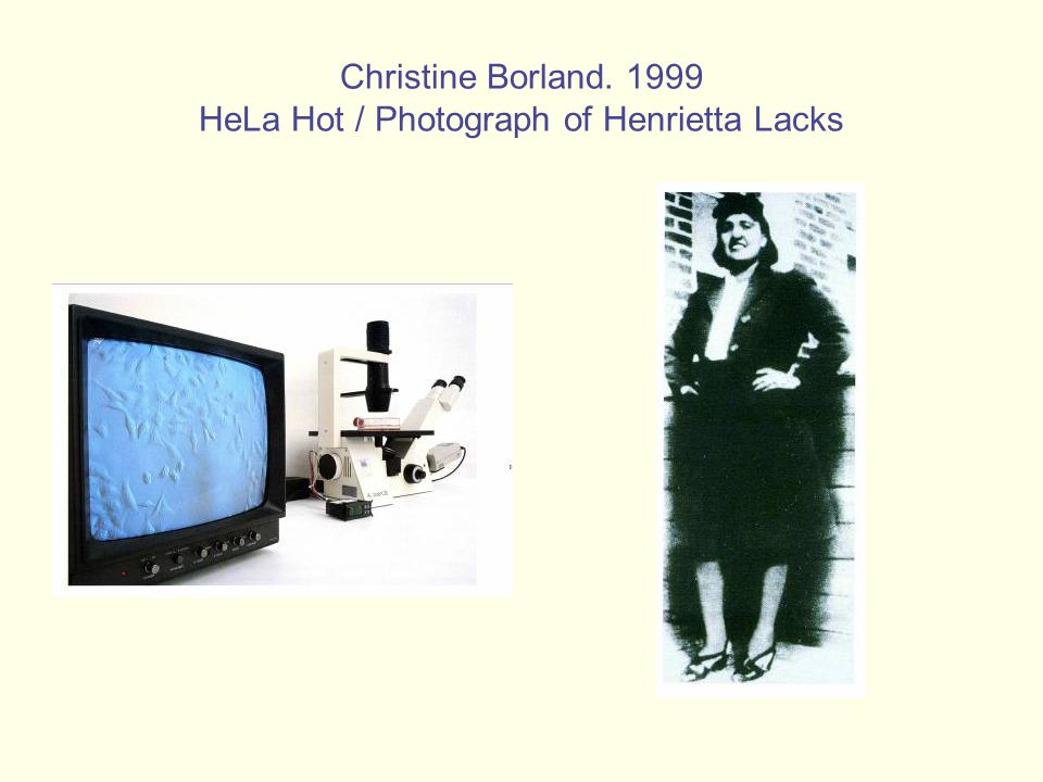 Christine Borland. 1999 HeLa Hot / Photograph of Henrietta Lacks