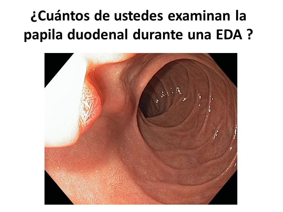 ¿Cuántos de ustedes examinan la papila duodenal durante una EDA ?