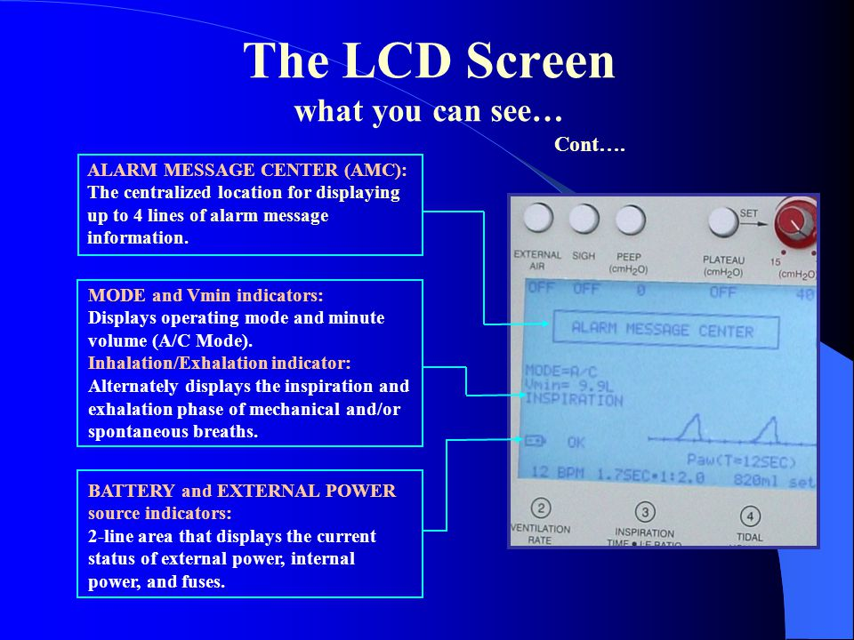 The LCD Screen what you can see… ALARM MESSAGE CENTER (AMC): The centralized location for displaying up to 4 lines of alarm message information. BATTE