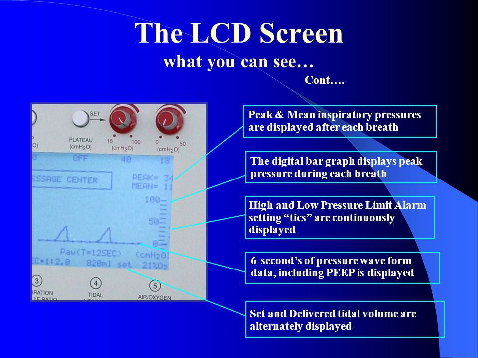 """The LCD Screen what you can see… High and Low Pressure Limit Alarm setting """"tics"""" are continuously displayed Set and Delivered tidal volume are altern"""