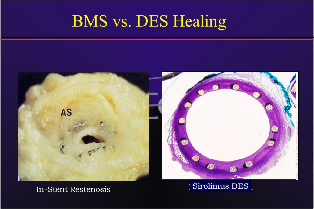 Bare Metal Stent BMS vs. DES Healing In-Stent Restenosis Sirolimus DES