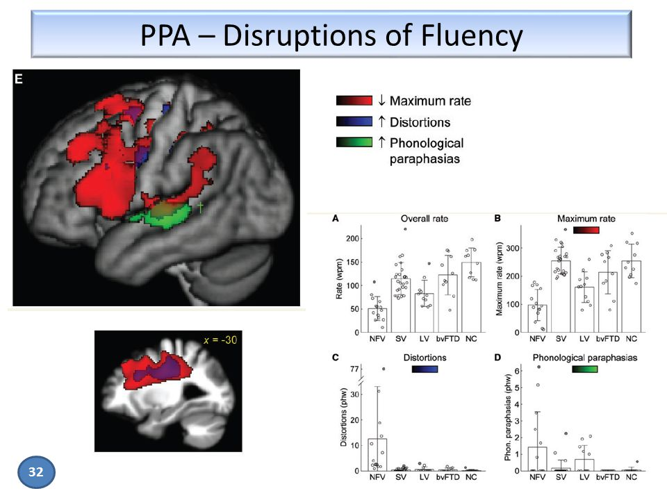 PPA – Disruptions of Fluency 32