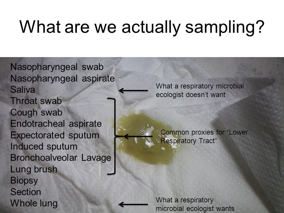 What are we actually sampling.