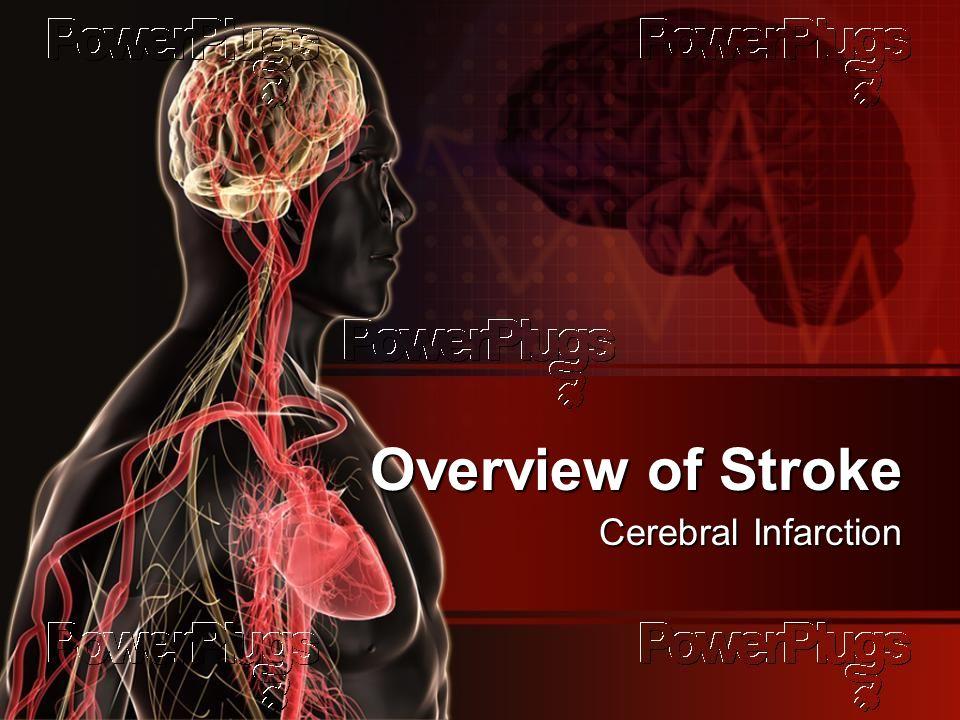 Overview of Stroke Cerebral Infarction