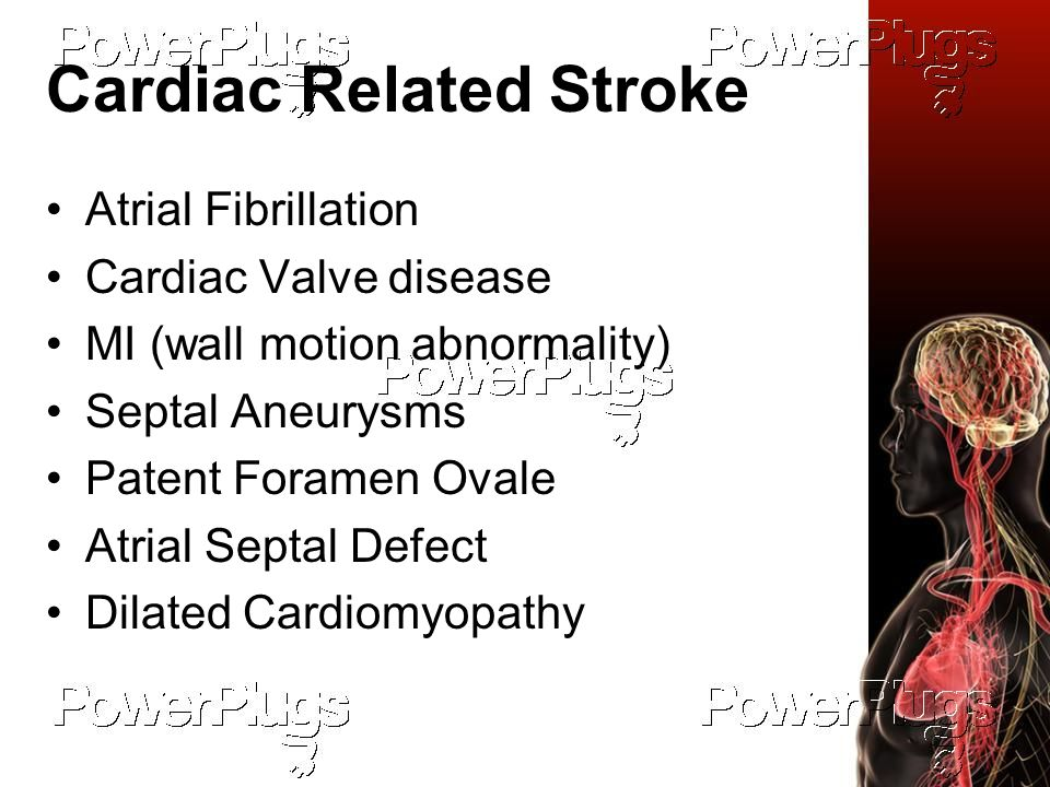 Cardiac Related Stroke Atrial Fibrillation Cardiac Valve disease MI (wall motion abnormality) Septal Aneurysms Patent Foramen Ovale Atrial Septal Defect Dilated Cardiomyopathy