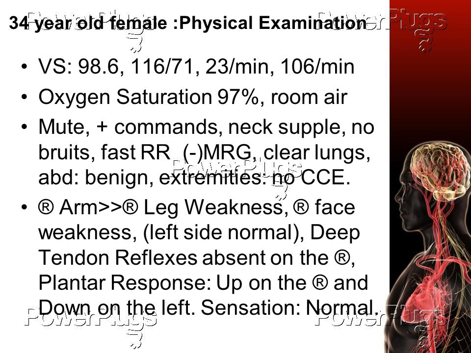 34 year old female :Physical Examination VS: 98.6, 116/71, 23/min, 106/min Oxygen Saturation 97%, room air Mute, + commands, neck supple, no bruits, fast RR (-)MRG, clear lungs, abd: benign, extremities: no CCE.