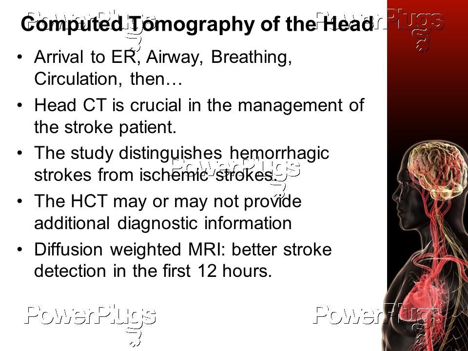 Computed Tomography of the Head Arrival to ER, Airway, Breathing, Circulation, then… Head CT is crucial in the management of the stroke patient.