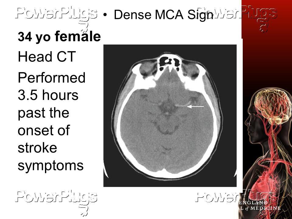 Easter JS et al. N J Med 2010;362:2114-2120. 34 yo female Dense MCA Sign Head CT Performed 3.5 hours past the onset of stroke symptoms