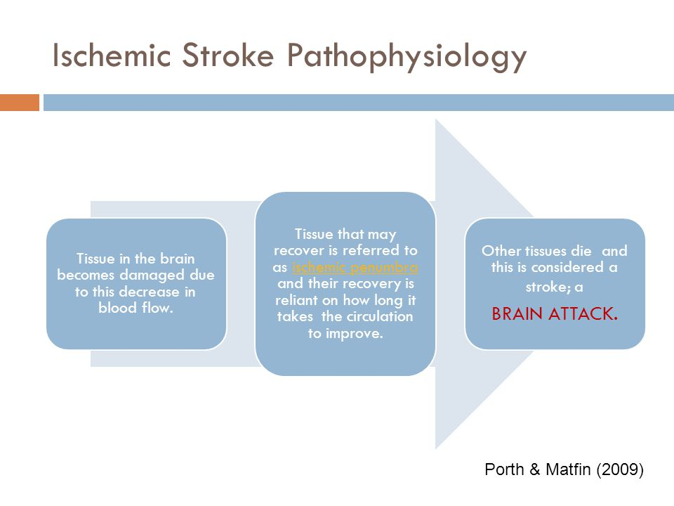 Ischemic Stroke Pathophysiology The thrombus may land in the left atrial appendage causing no real concern, or the clot travels with blood flow throug