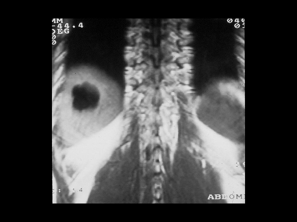 Quiste hepatico1a