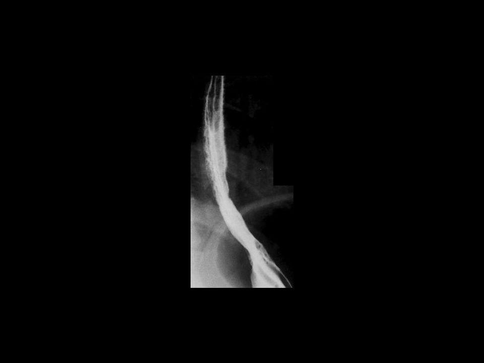 Esofagitis reflux