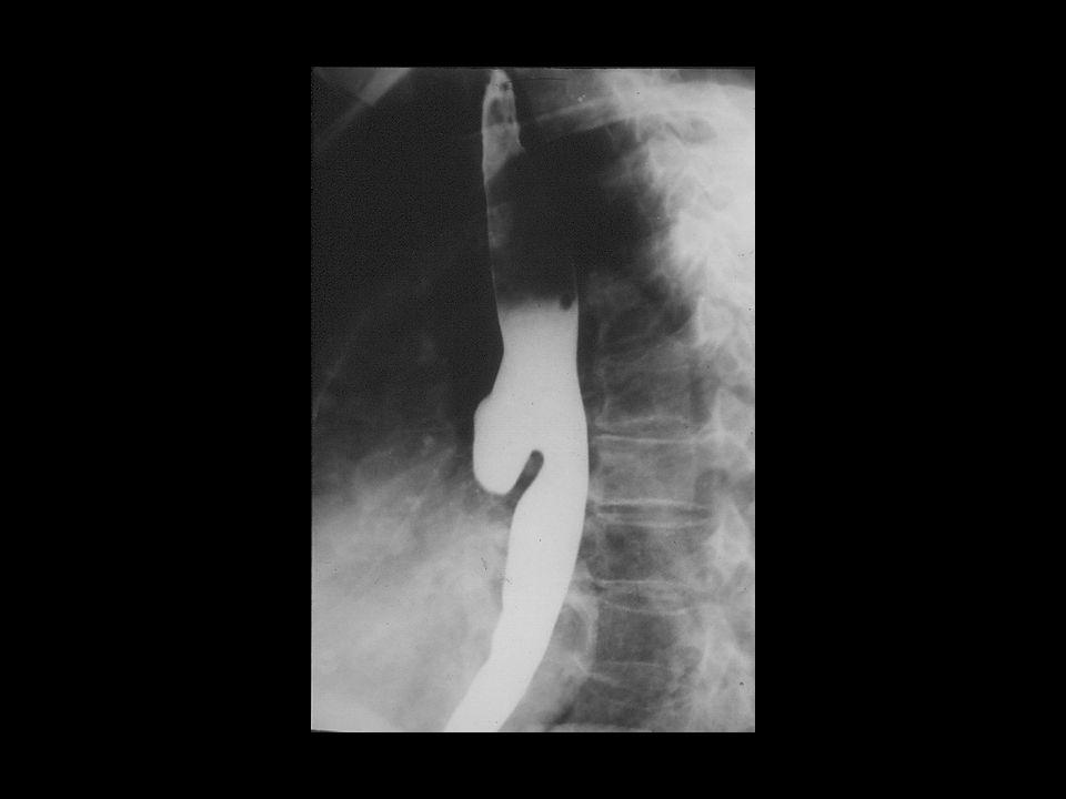 Div esofago