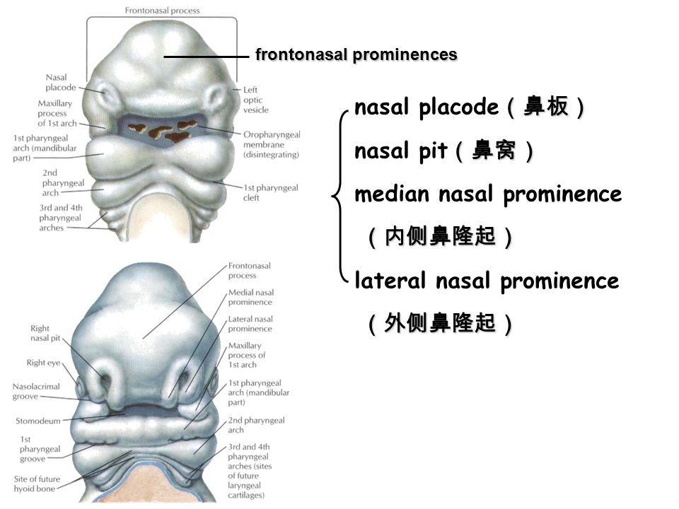 hyaline membrane disease (透明膜病) Respiratory distress syndrome (RDS) ► Hypoplasia of type Ⅱ alveolar cells → insufficient surfactant → surface tension↑ → alveoli collapse → difficult to breath; ► Usually seen in premature infants and accounts for about 20% of deaths among newborns.