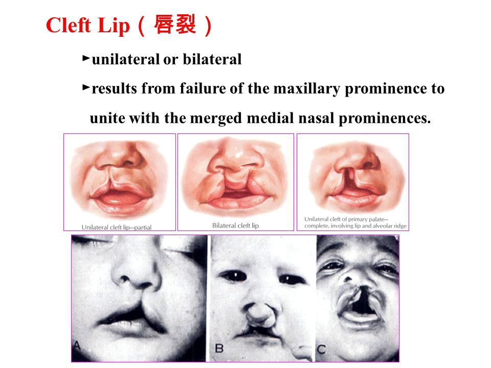 ► unilateral or bilateral ► results from failure of the maxillary prominence to unite with the merged medial nasal prominences.