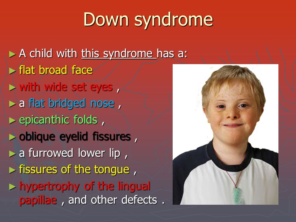 Down syndrome ► An affected child can have various levels of mental retardation