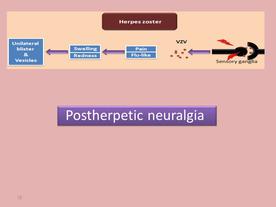 Postherpetic neuralgia 18