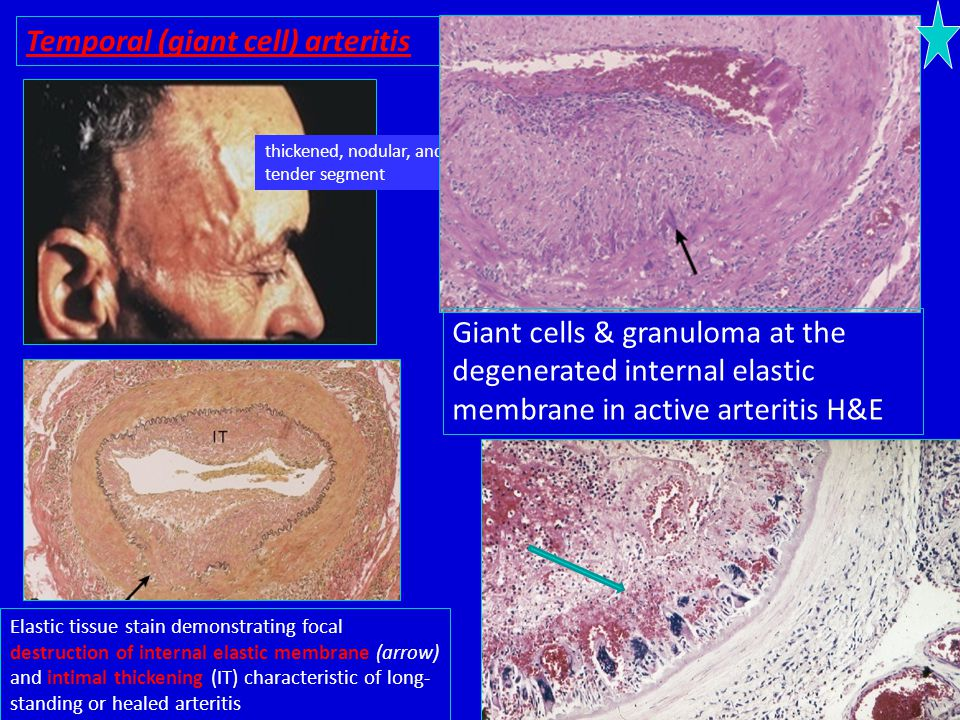 Temporal (giant cell) arteritis thickened, nodular, and tender segment Giant cells & granuloma at the degenerated internal elastic membrane in active