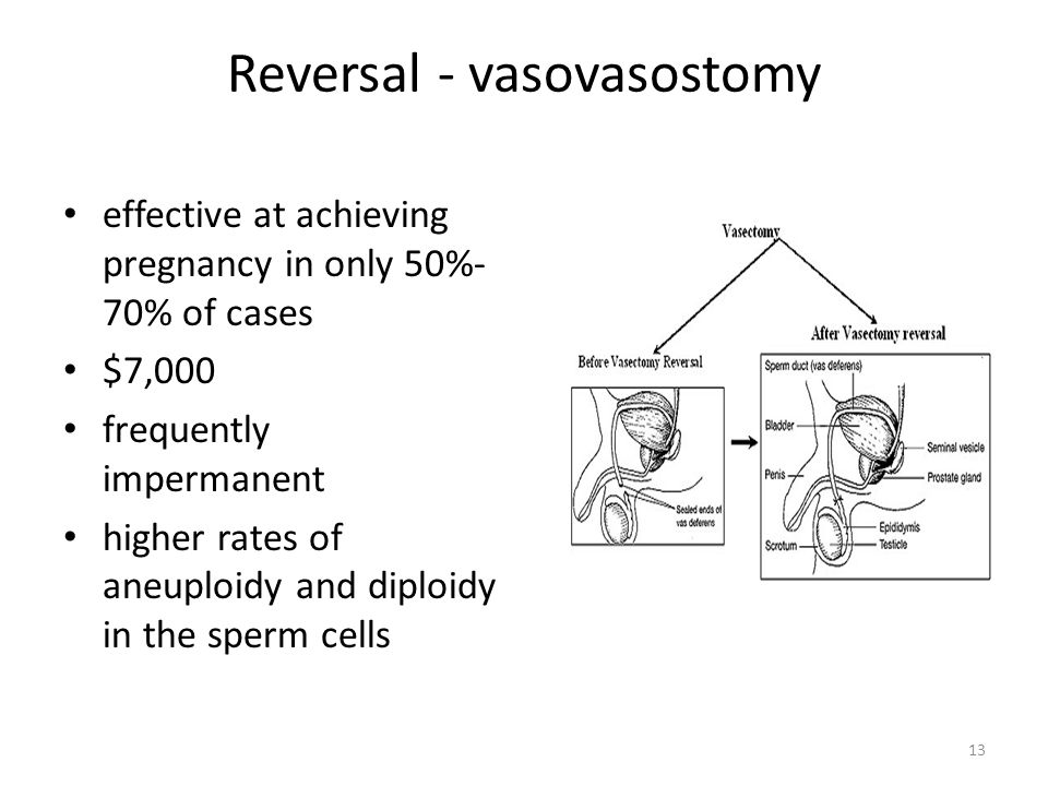 Reversal - vasovasostomy effective at achieving pregnancy in only 50%- 70% of cases $7,000 frequently impermanent higher rates of aneuploidy and diploidy in the sperm cells 13